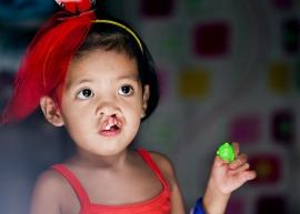 Lịch phẫu thuật miễn phí của Operation Smile cho trẻ em dị tật hàm mặt trong tháng 7/2020