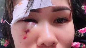 Tin tức thời sự 24h nóng nhất sáng 9/9: Chủ tịch Hội Cựu chiến binh đấm rách mặt một phụ nữ