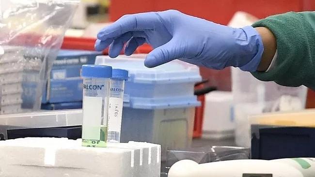 trieu tien thong bao ca nghi nhiem virus sars cov 2 dau tien