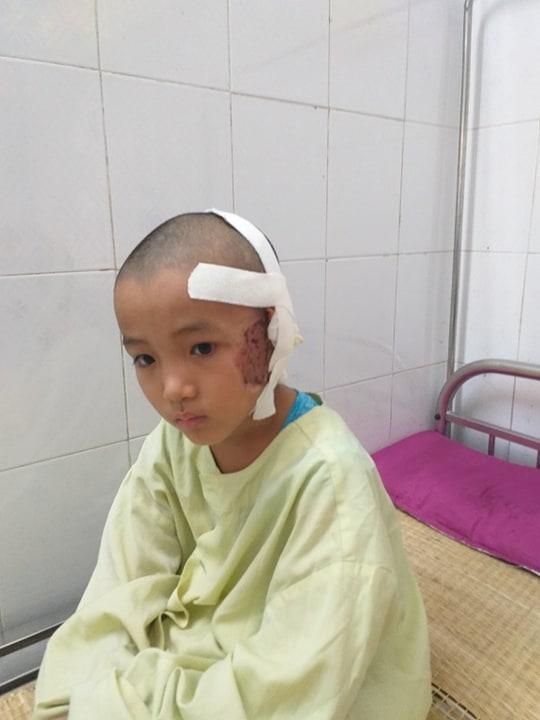Bé Kiệt phải cắt bỏ tai trái sau vụ tai nạn