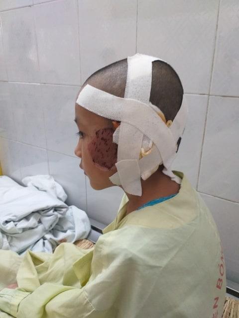 Kiệt đã trải qua 2 ca phẫu thuật, vết thương đang trong quá trình theo dõi