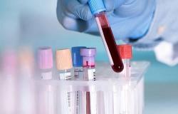 viet nam sap co test kit xet nghiem nhanh virus covid 19