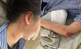 Tin mới vụ cô gái bị gã trai xăm trổ đánh đập dã man ở Yên Bái
