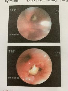 Cần Thơ: Lấy thành công hạt đậu phộng nằm trong phổi cụ ông suốt 2 tháng