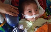 """Ánh mắt cầu cứu của bé trai 8 tháng sống phụ thuộc vào máy thở: """"Nếu ngừng bóp bình oxy con tôi sẽ ngưng thở"""""""