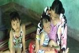 Xót thương số phận đứa bé bị bỏng nặng tại tỉnh Quảng Nam