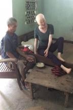 Nghệ An: Xót thương gia cảnh chồng tàn tật chăm vợ ung thư, con dính ruột