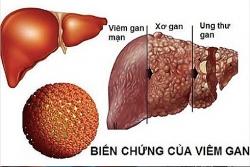 cac phuong phap y hoc co truyen giup ho tro dieu tri ung thu